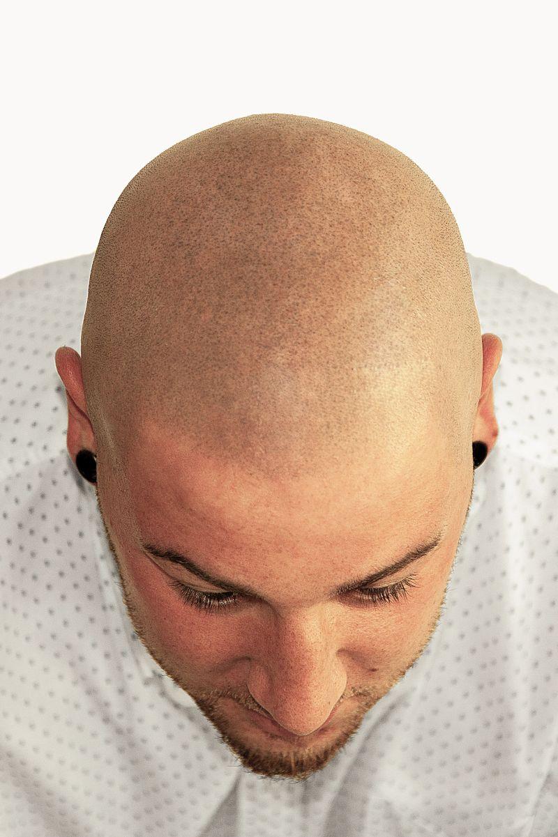 Kunde nach MHP Haarpigmentierung