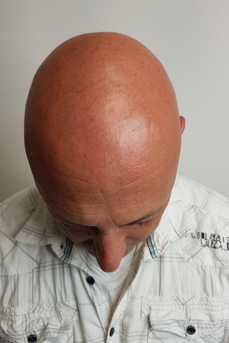 Kunde vor MHP Haarpigmentierung